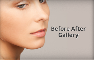 Before & After Galleries