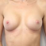 Ant postop C cup breasts after 225cc anatomic subglandular breast augmentation