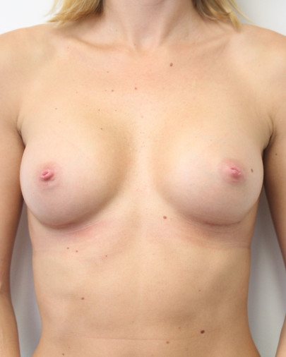 Ant postop C cup breasts after 225cc anatomic subglandular breast augmentation