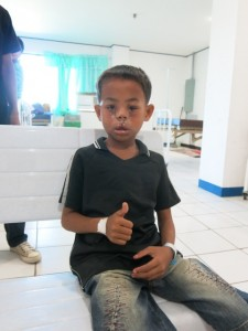 Postop day 3 of young boy after the correction of bilateral facial clefts