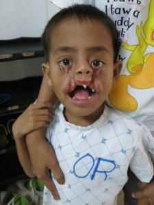 Preop young boy with bilateral facial clefts