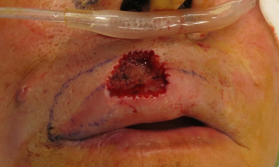 Preop upper lip defect after the removal of an aggressive squamous cell cancer