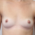 Ant preop 24 yr old woman with small A cup breasts before breast augmentation