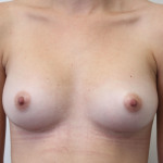 Postop ant C cup breasts after 225cc anatomic submuscular breast augmentation