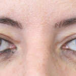 Postop 45 year old woman with rejuvenated eyelids after blepharoplasty