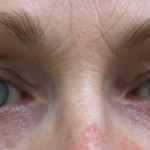 Postop 49 yo woman with periorbital rejuvenation after upper and lower blepharoplasty