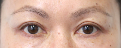 Postop 51 yo Asian woman after blepharoplasty with a more wider eyed appearance
