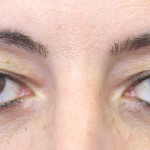 Preop 45 year old woman with hooded upper eyelids before blepharoplasty