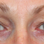 Preop 49 yo woman with advanced preorbital eyelid ageing