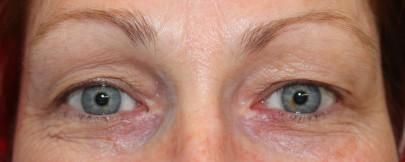 Preop 49 yo woman with advanced preorbital eyelid ageing