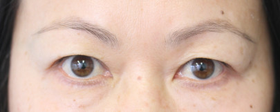Preop 51 yo Asian woman with heavy upper eyelid hooding with fat pads