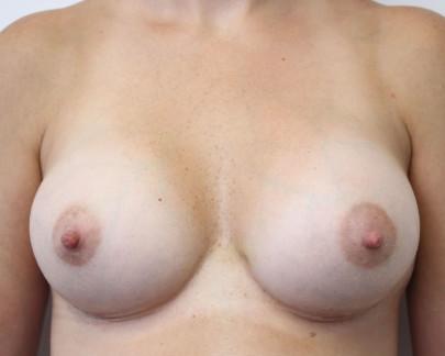 Ant postop C cup breasts after 255cc post pregnancy subglandular breast augmentation