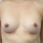 Ant postop B cup breasts after 180cc submuscular breast augmentation and nipple reduction