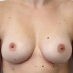 Ant postop D cup breasts after 295cc anatomic subglandular breast augmentation