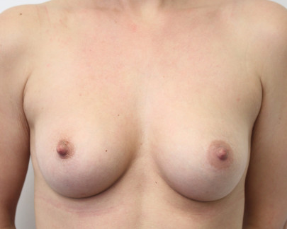 Ant postop C cup breasts after 225cc anatomic teardrop subglandular breast augmentation