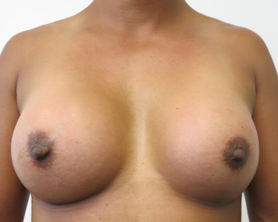 Ant postop D cup breasts after 3755cc round subfascial breast augmentation