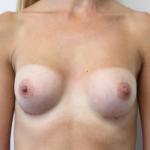 Ant postop B cup breasts after 225cc anatomic subglandular breast augmentation