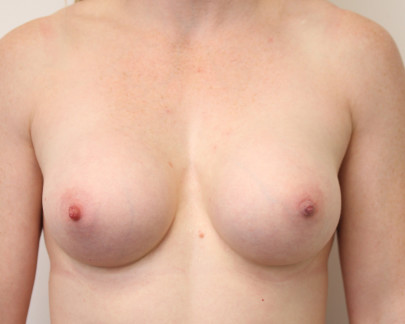 Ant postop C cup breasts after 300cc round subglandular breast augmentation