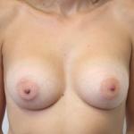 Ant postop C cup breasts after 215cc anatomic subglandular breast augmentation