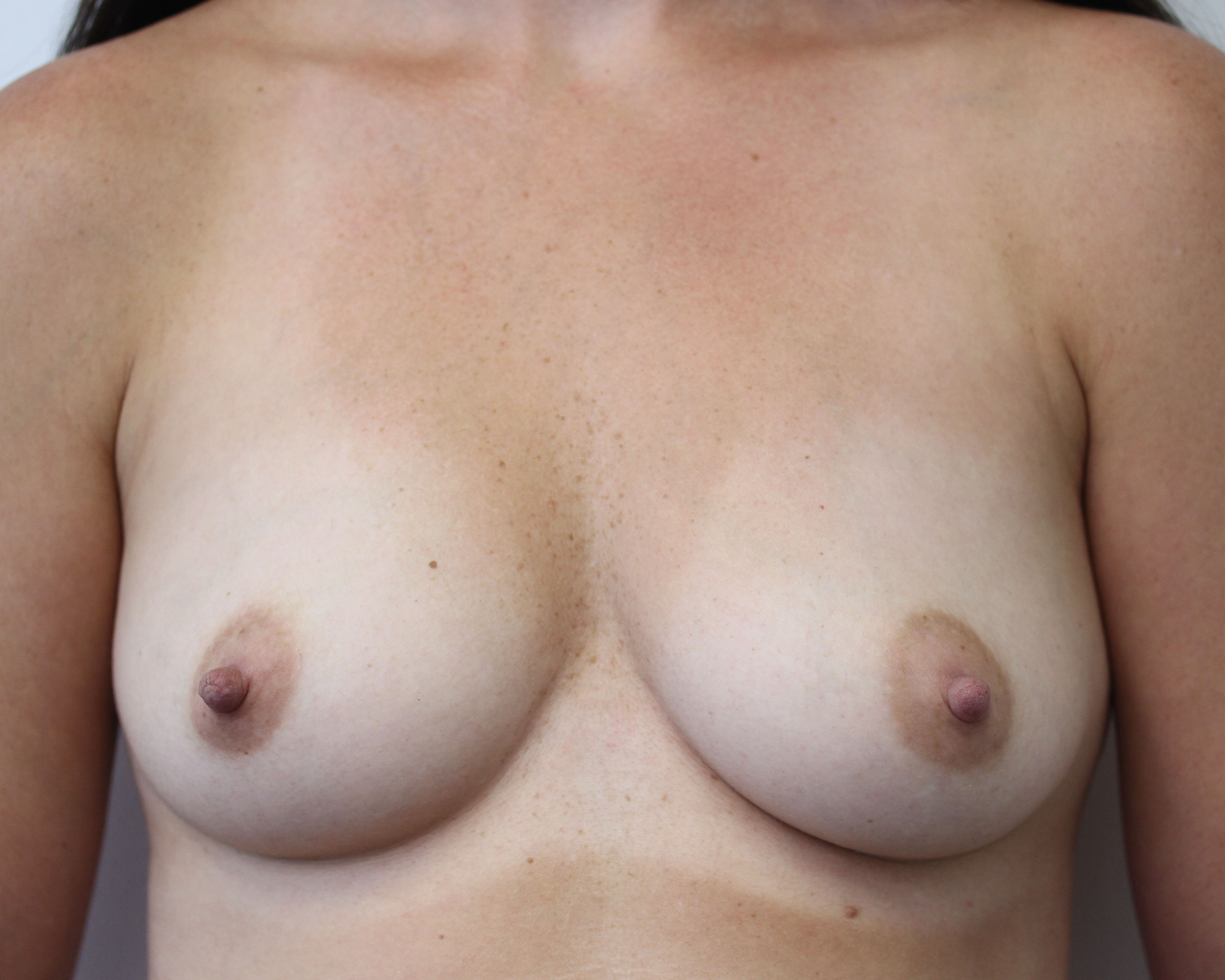Ant preop 35 yr old woman with deflated B cup breasts after breastfeeding