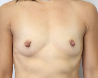 Ant preop A cup breasts lacking definition with large nipples