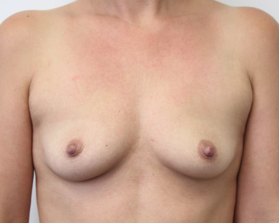 Ant preop deflated B cup breasts before breast augmentation