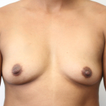 Ant preop 31 yr old woman with A cup breasts before breast augmentation