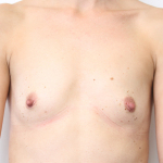 Ant Preop 36 yr old woman with small A cup breasts