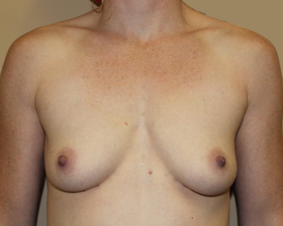 Ant preop 29 yr old with B cup breasts before breast augmentation