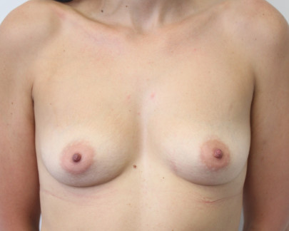 Ant preop 38 yr old woman with B cup breasts with droop