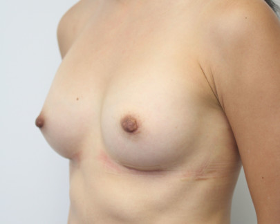 Lat obl postop full B cup breasts with nipple reduction