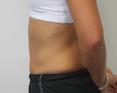 Lat postop 38 yo woman with flat stomach after abdominoplasty
