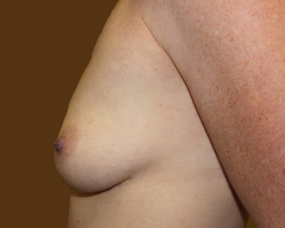 Preop lat small B cup breasts