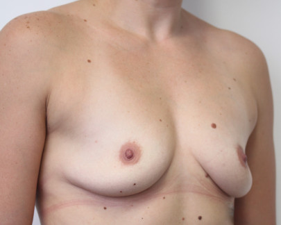 Preop obl lat deflated post-pregnancy B cup breasts