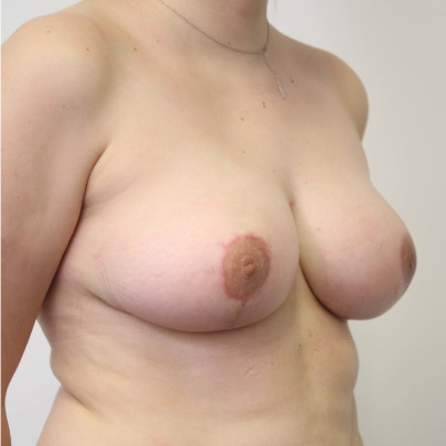 Postop obl C cup breasts following breast reduction using short scar technique