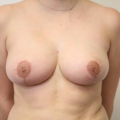 Postop ant C cup breasts following breast reduction using short scar technique