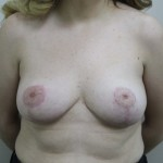 Postop ant C cup breasts after breast reduction using short scar technique