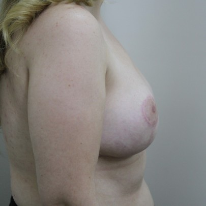 Postop lat C cup breasts following a breast reduction using short scar technique