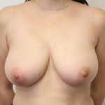 Preop ant large E cup breasts before breast reduction