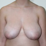 Preop ant H+ cup breasts with skin excoriation before breast reduction