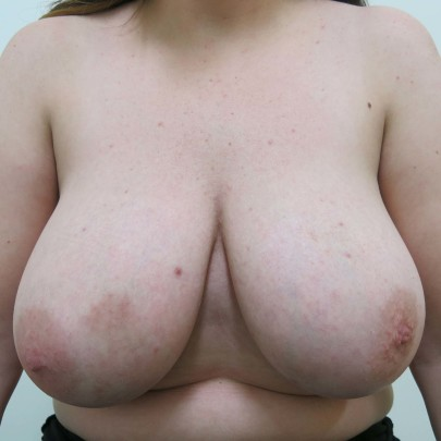 Preop ant F cup breasts before breast reduction