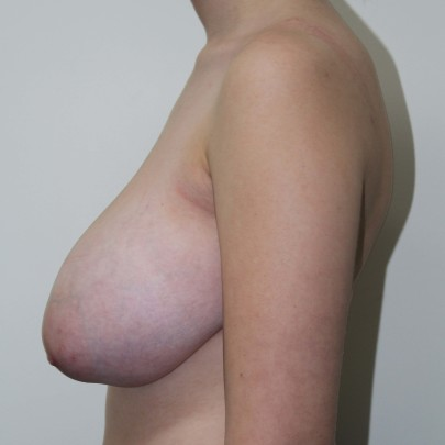 Preop lat H cup breasts requiring breast reduction