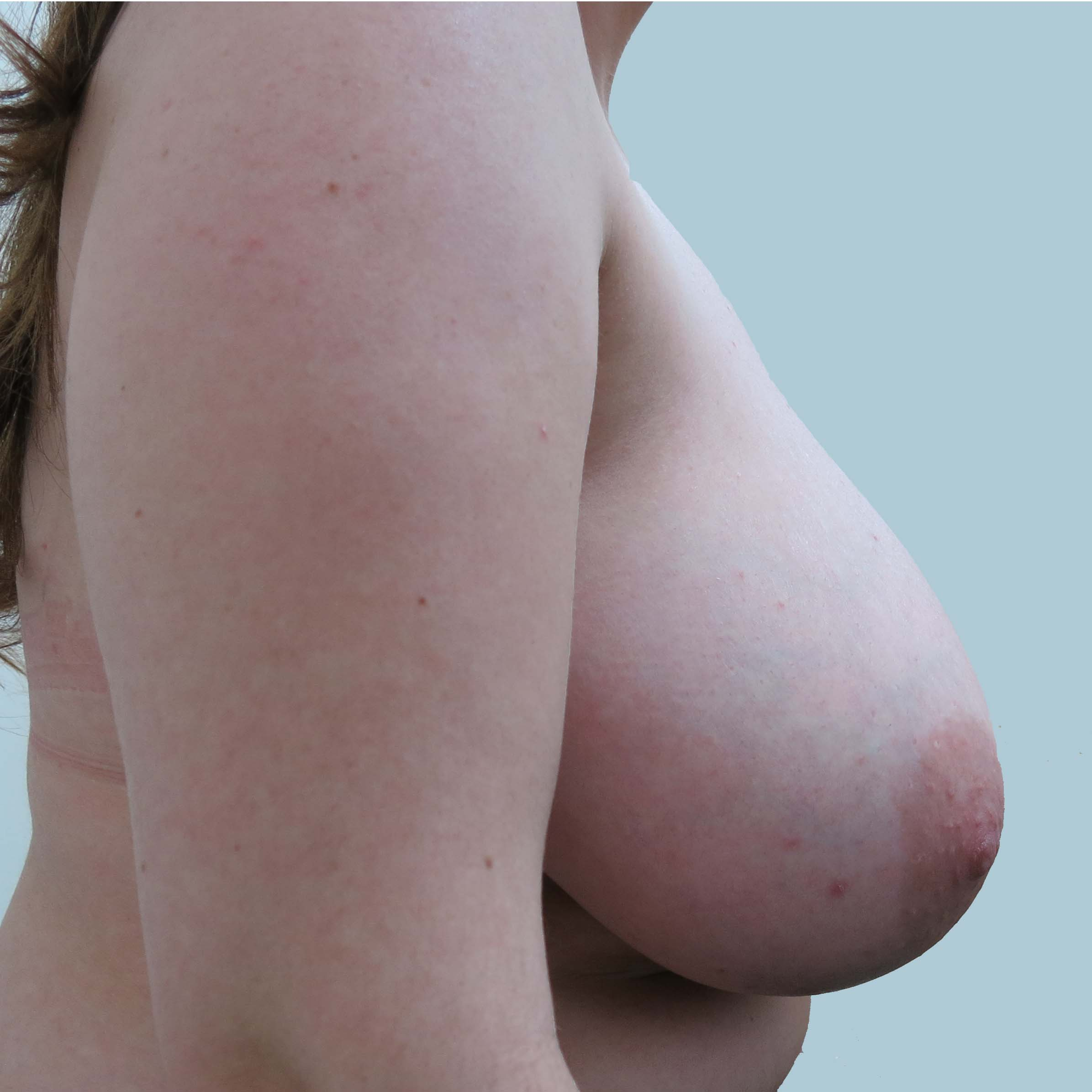 Preop lat F cup breasts causing upper back and neck pain