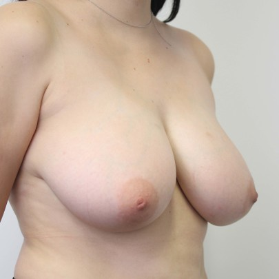 Preop side view of E cup breasts requiring breast reduction