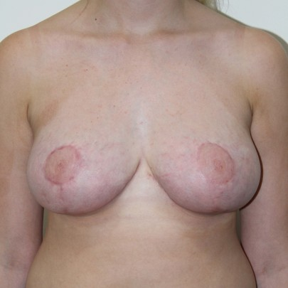 Postop ant D cup breasts after breast reduction using a short scar technique