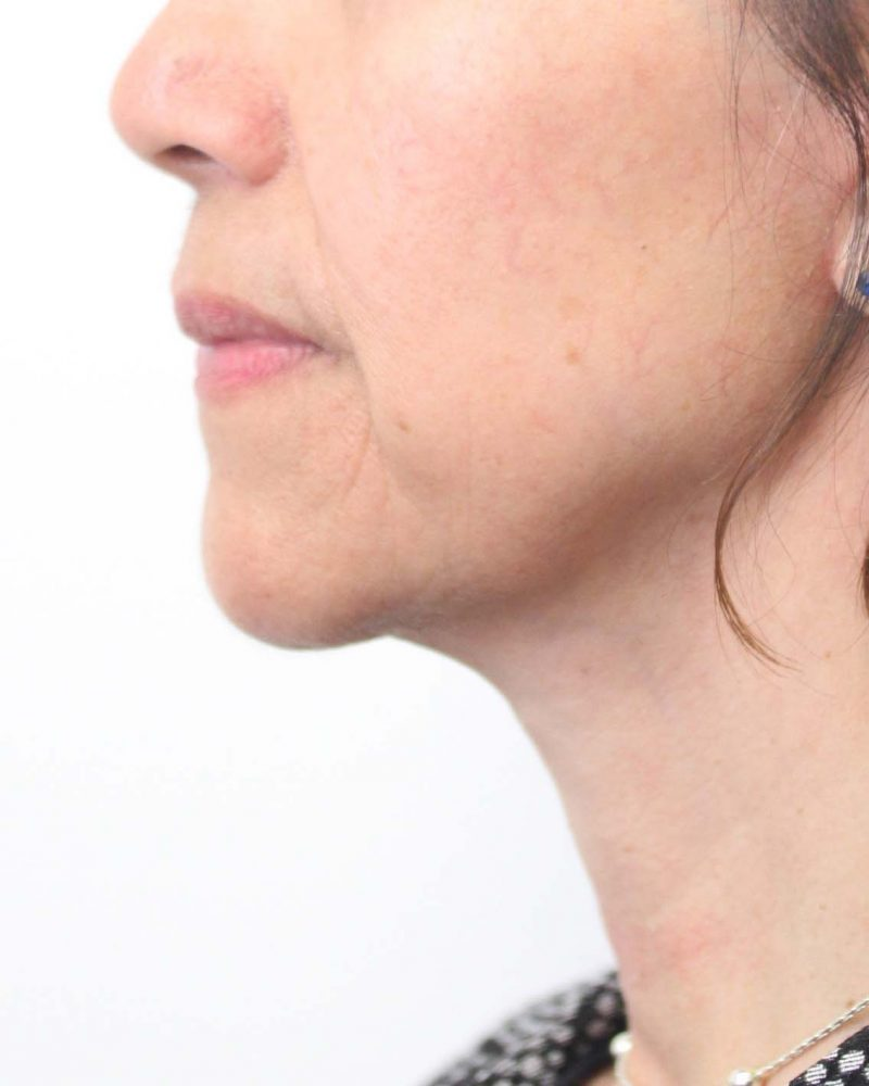 Manderson cow facial eczema